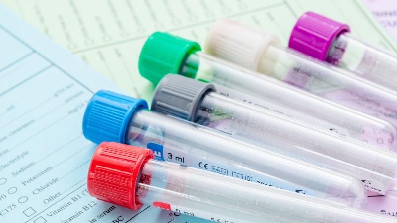 Hormone Testing Methods—Saliva, Blood, and FSH