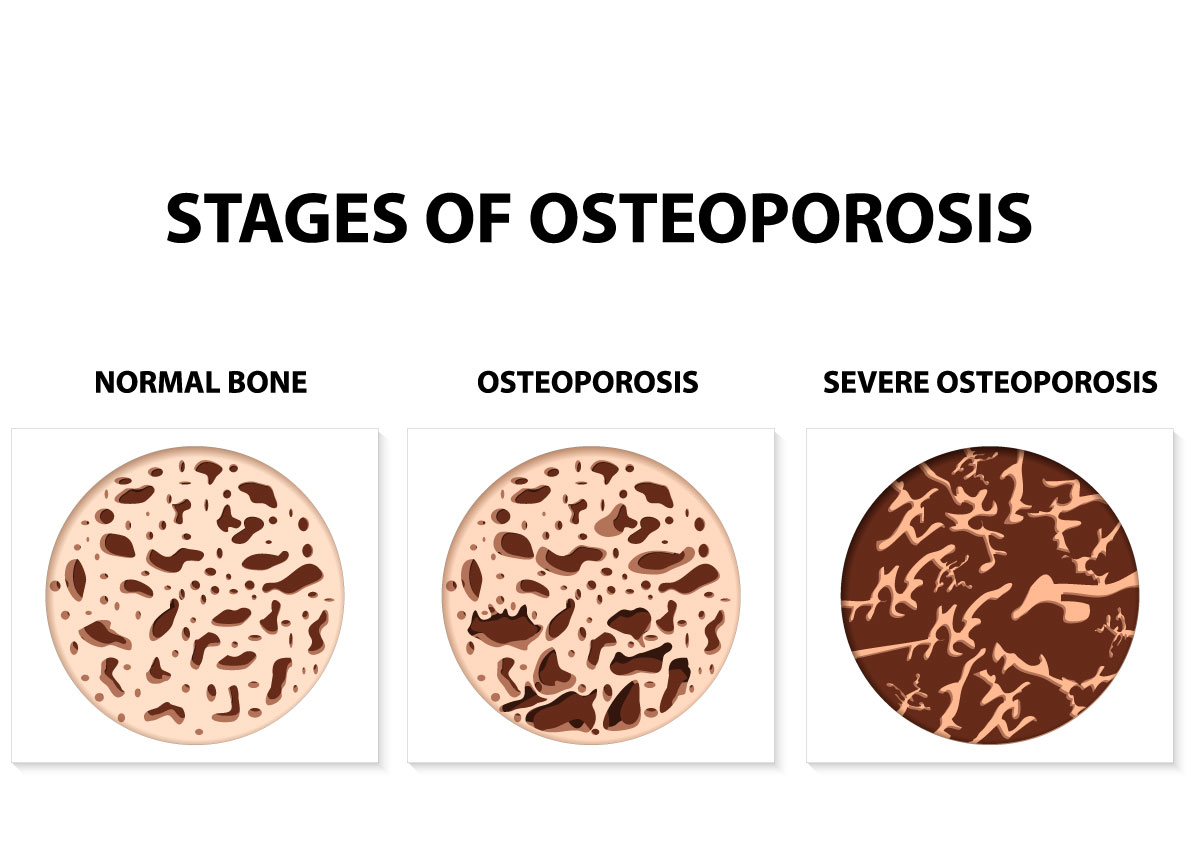 What is osteoporosis?—What part of the body is affected?