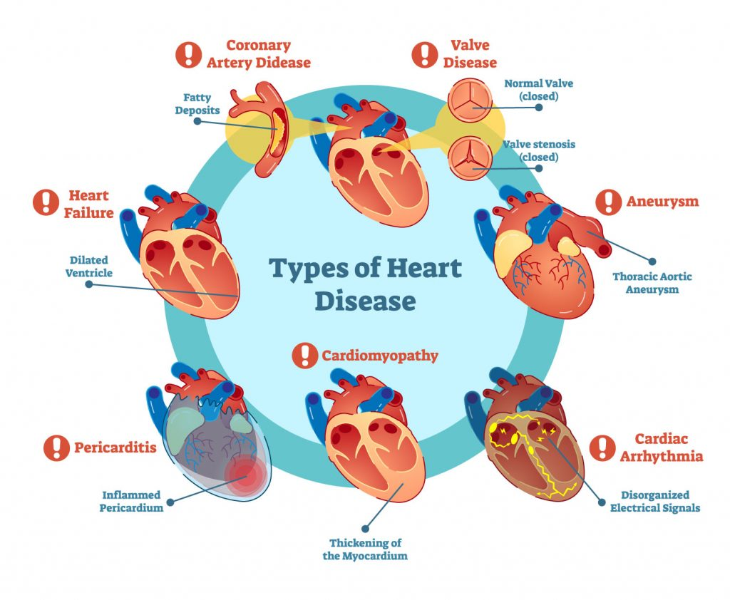 Graphic showing types of heart disease