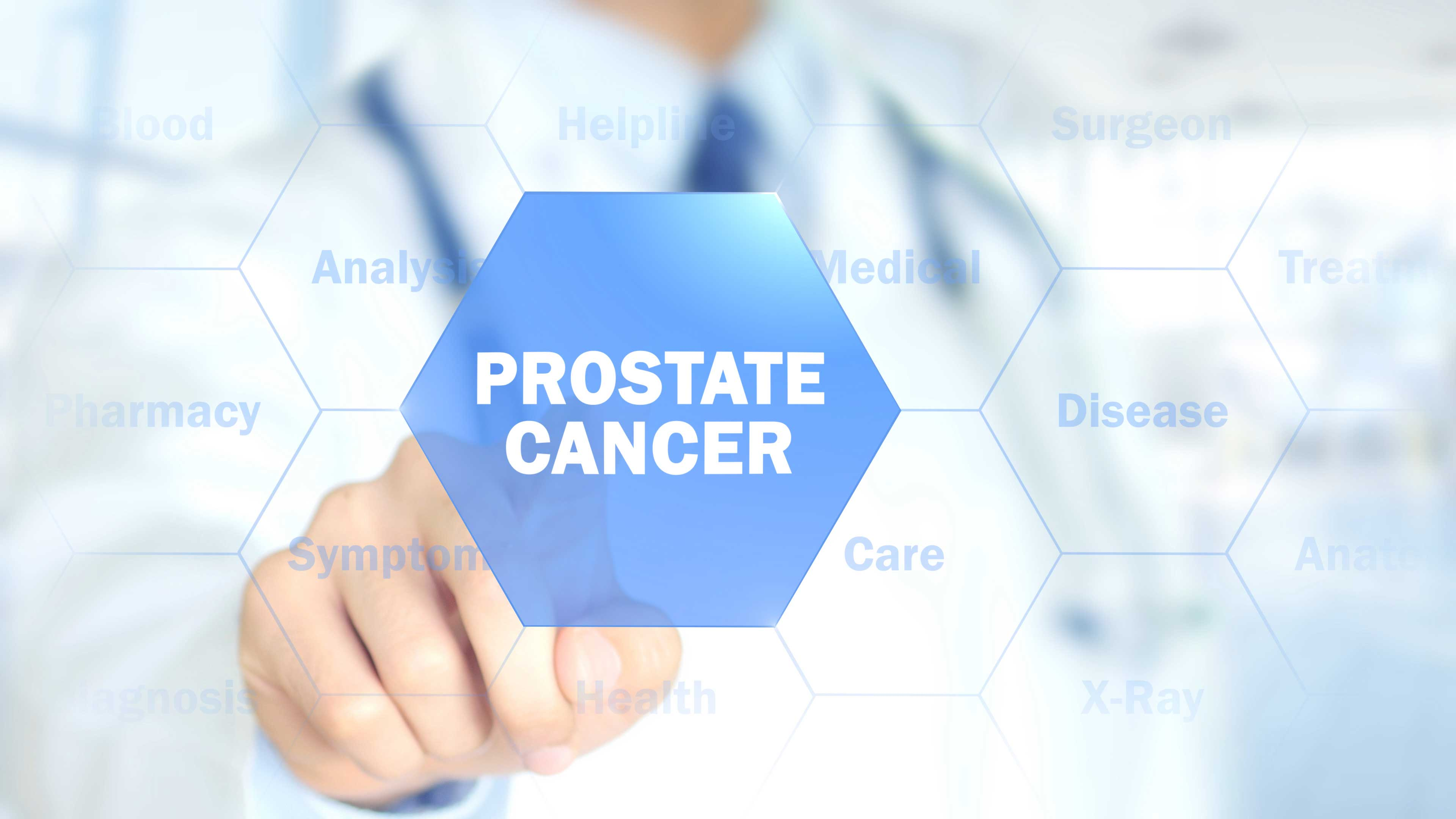 Prostate Cancer, Symptoms, Causes, Treatment, and Prevention