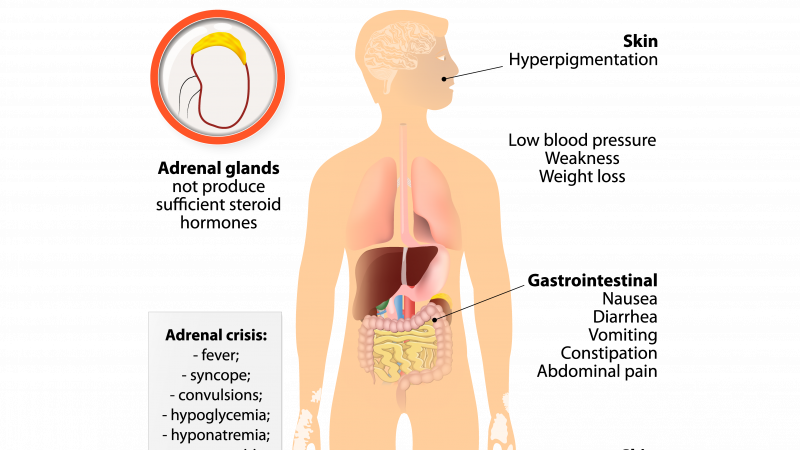 Answers for Adrenal Insufficiency and Addison's Disease, What You Don't Know Can Hurt You