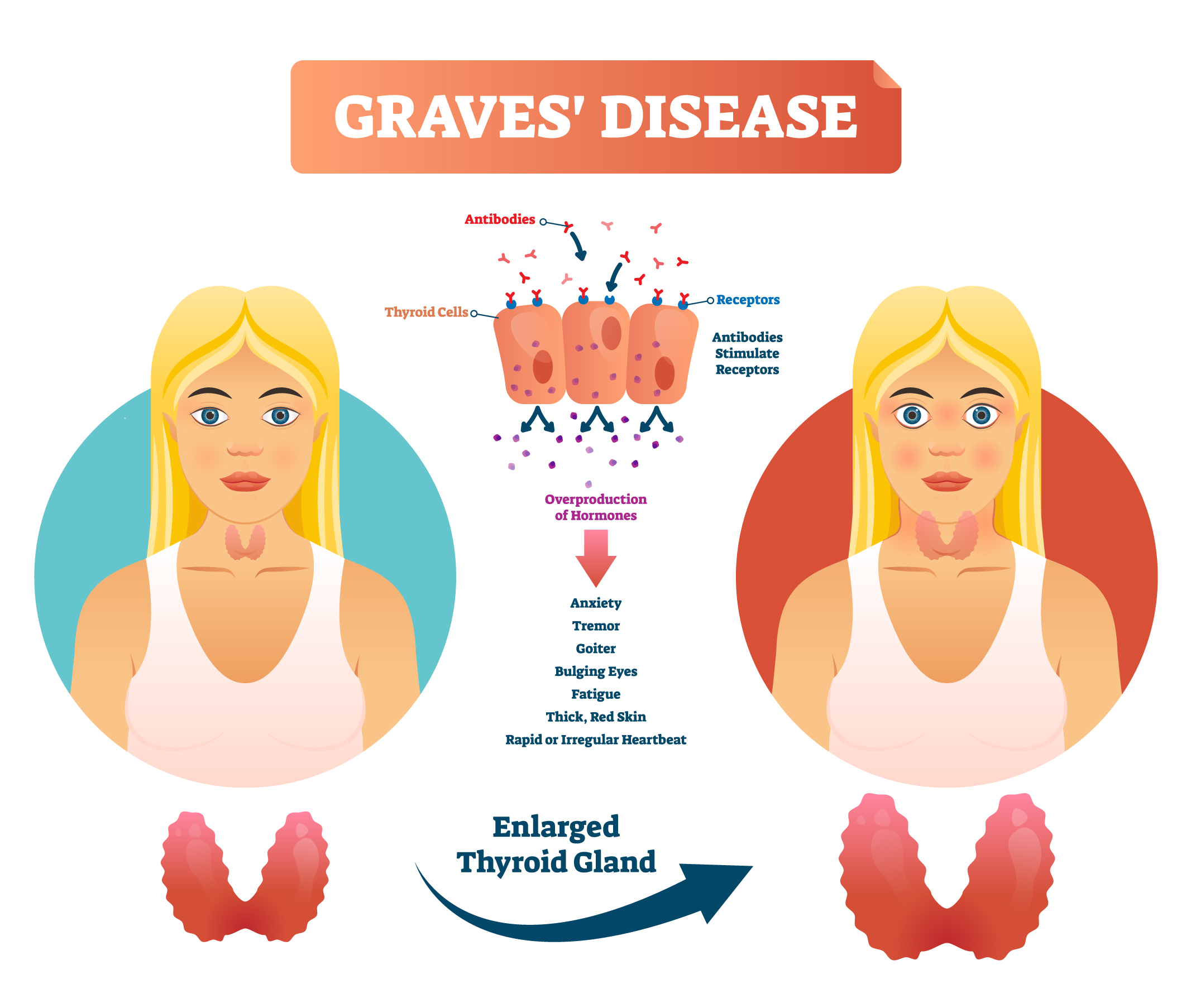 What Is Graves Disease Causes Symptoms Diagnosis Treatment