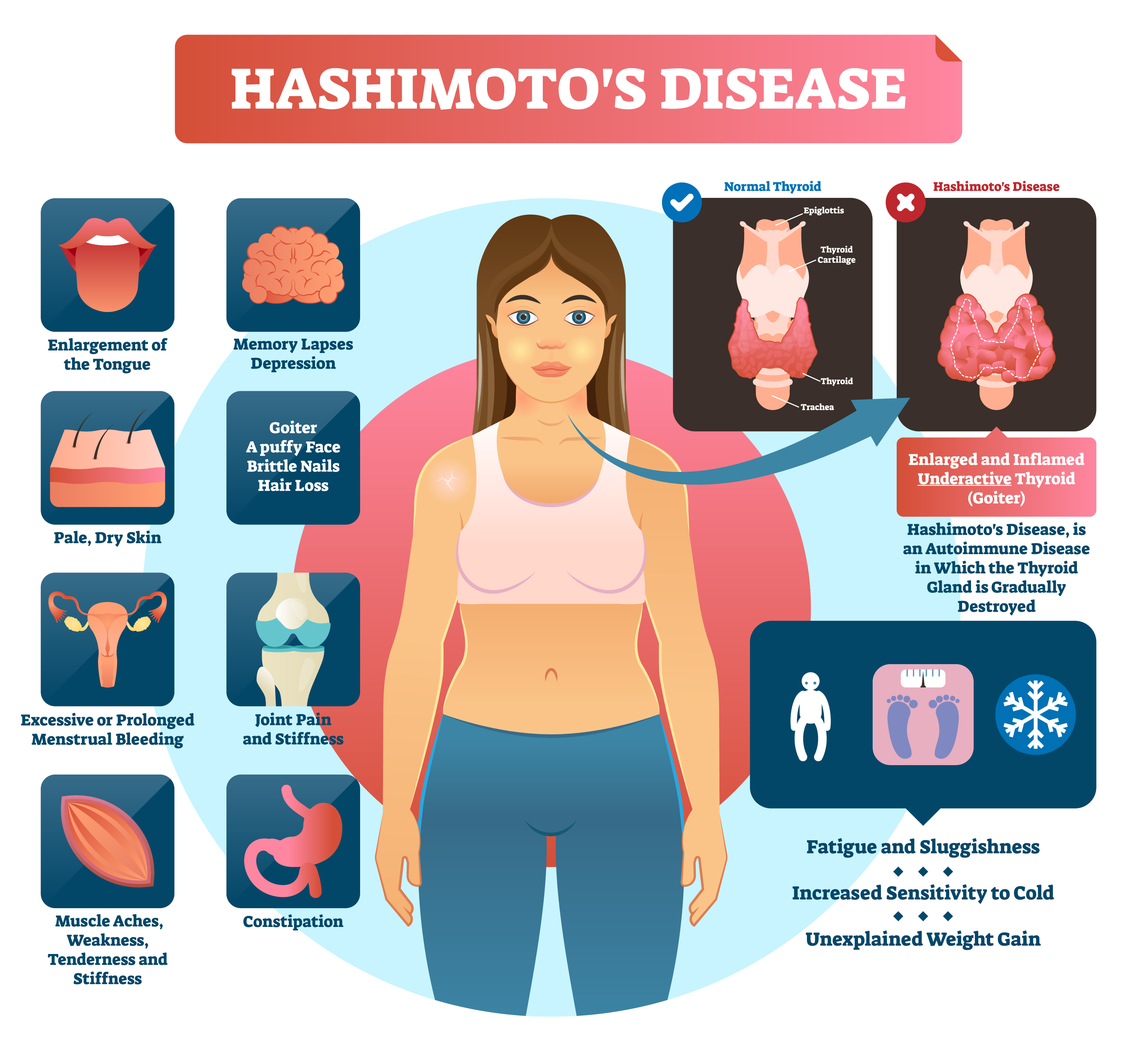 Help For Hashimoto S Disease Causes Complications And Treatment