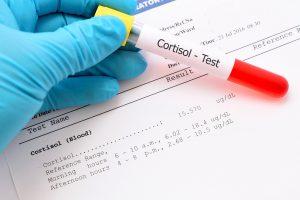 Cortisol-Testing-Test-Cortisol-Levels-(Blood,-Urine,-Saliva)
