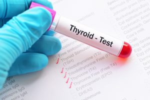 Thyroid Testing Thyroid Function Test
